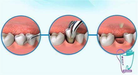 کشيدن دندان زماني است که دندان شما به دليل بيماري، تروما (مانند وارد شدن ضربه به دندان) و يا شلوغي سيستم دنداني، از دهان شما خارج مي شود