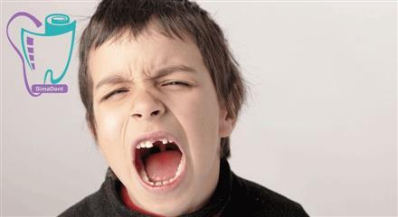 اگر دندان کودک از دهانش بيرون بيفتدآن را در محيط مرطوب قرار دهيد و سپس به دندانپزشک مراجعه کنيد