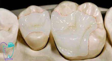 اینله ترمیم غیرمستقیمی است که در آن یک ماده جامد، مانند طلا، پرسلن یا رزین کامپوزیتی، در حفره پوسیدگی داخل دندان جای داده و با سیمان دندانپزشکی چسبانده میشود