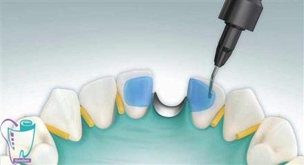 پل یا بریج کامپوزیتی چسبنده زمانی به کار برده میشود که یک دندان، معمولاً دندان پیشین، از دست رفته و غایب باشد