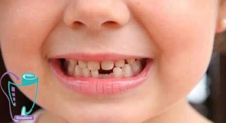 دندان شیری نوزادان و کودکان و زمان درآمدن آن