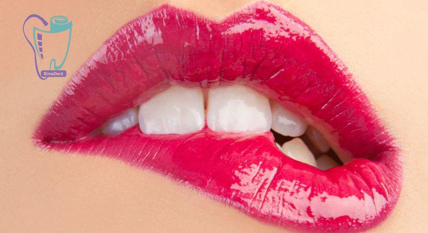 استرس در دندان پزشکی