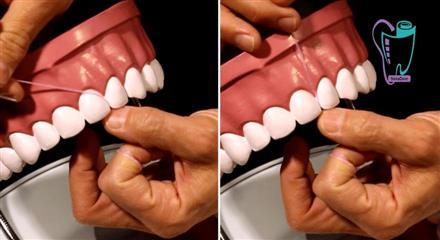 نخ دندان و تمیزکننده های بین دندانی