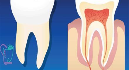 درمان ریشه دندان