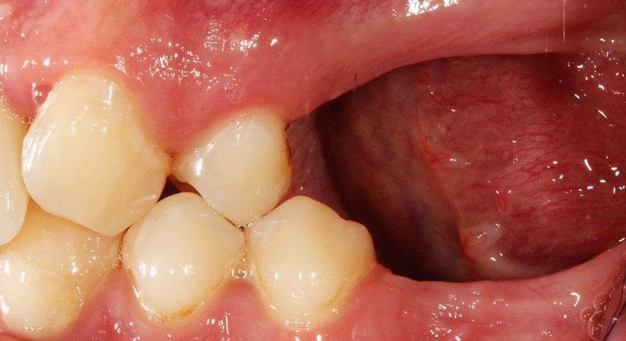 عوارض عدم جایگزینی دندانهای کشیده شده
