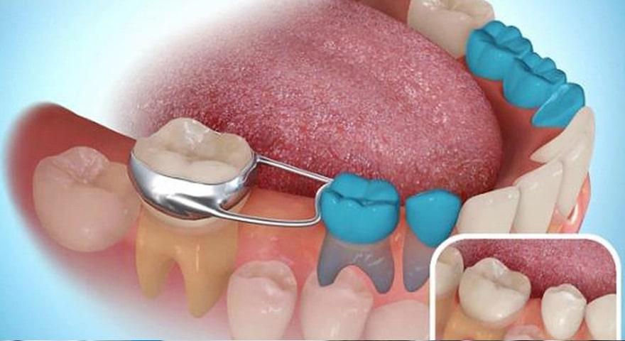 فضانگهدار دندان