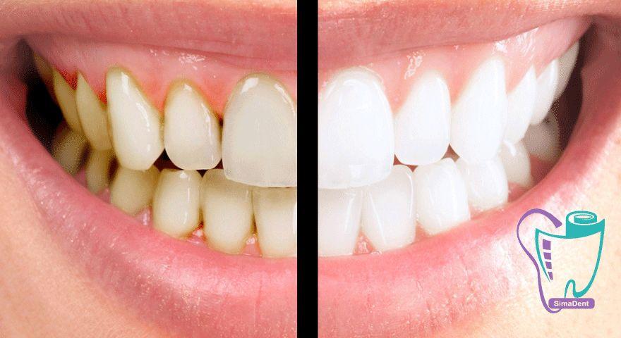 گایدلاین انجمن دندانپزشکی آمریکا برای درمان بیماری لثه