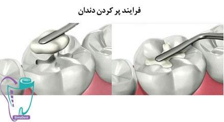 فرایند پر کردن دندان