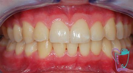 جرم گیری دندان و تصحیح سطح ریشه