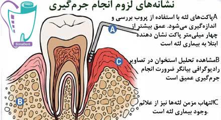آبسه و عفونت لثه و دندان
