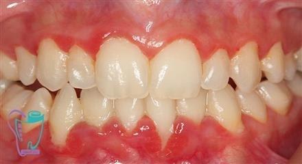 مراحل جرمگیری و پاکسازی دندان
