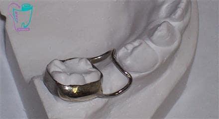 فضا نگهدار دندان
