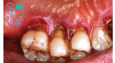 دیابت و دندان
