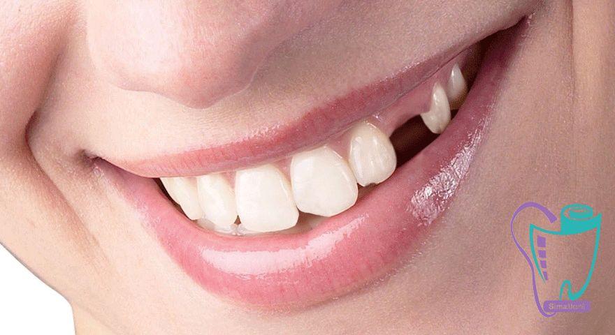 دندان های از دست رفته