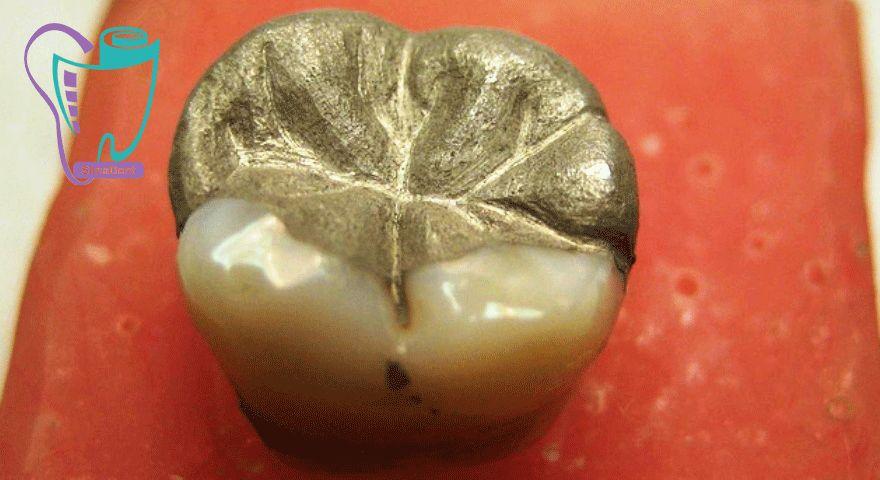 کاربرد مواد آمالگام دندانی در دندانپزشکی (پر کردن و ترمیم دندان) مزایا و معایب