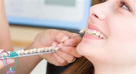 مشکلات قابل اصلاح با لمینت دندان