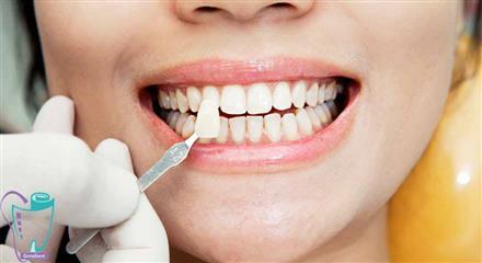 فرایند انجام لمینت سرامیکی دندان