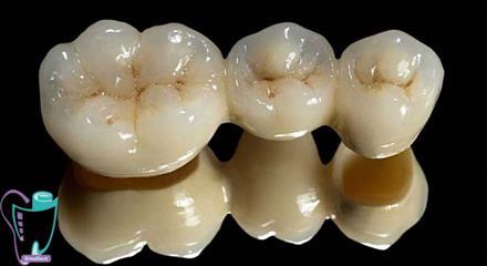 جایگزینهای لمینت دندان