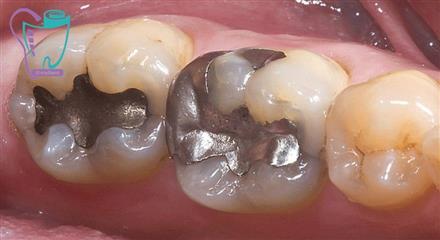 علائمی که نشانگر لزوم مراجعه به دندانپزشک است