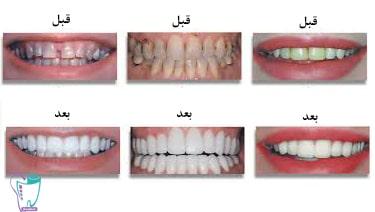 رنگ دندان