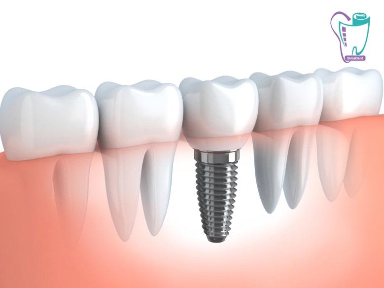 ایمپلنت - مزایای ایمپلنت دندان