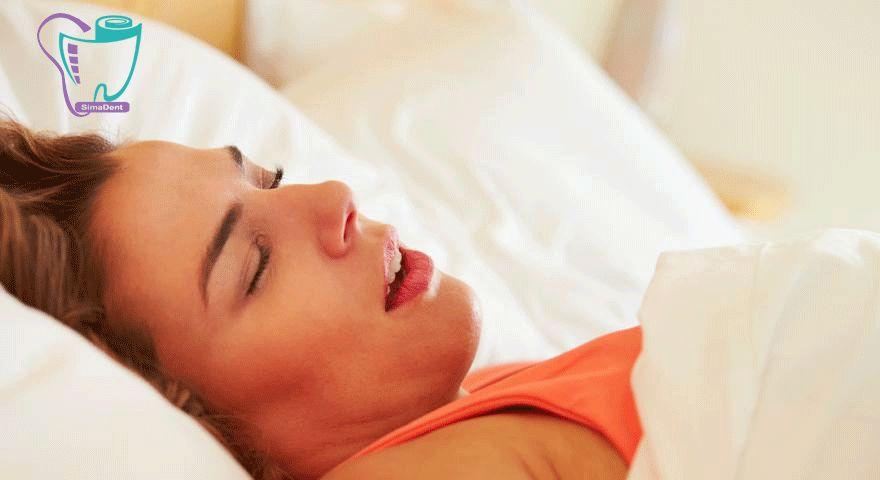 تنفس از راه دهان در هنگام خواب ریسک پوسیدگی دندان را افزایش می دهد.