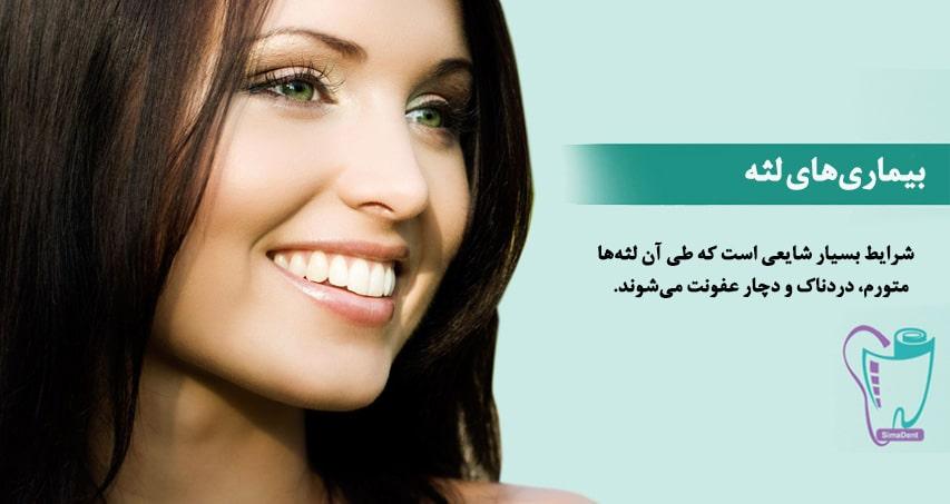 درمان بیماریهای لثه (عفونت و التهاب)