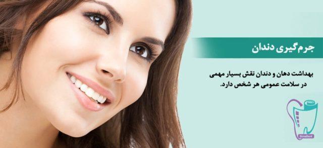 جرمگیری دندان (از بین بردن جرم دندان)
