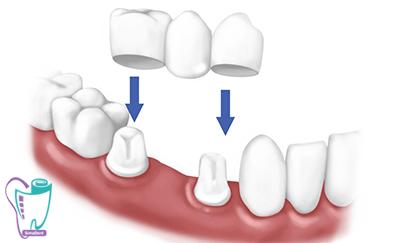 مشاوره و برنامهریزی برای تهیه و نصب روکش دندان در کلینیک تخصصی دندانپزشکی سیمادنت