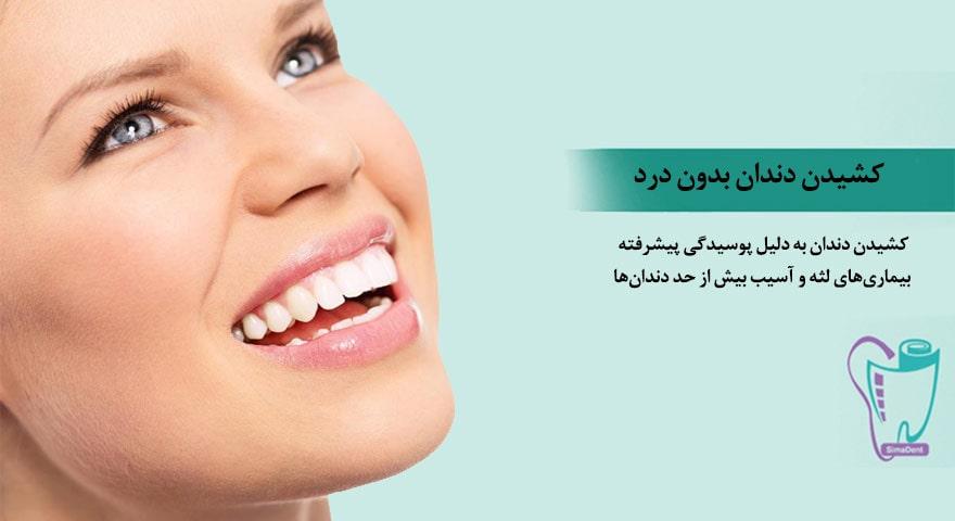 کشیدن دندان بدون درد