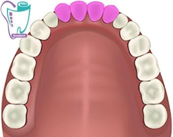 دندانهای پیشین (ثنایا)