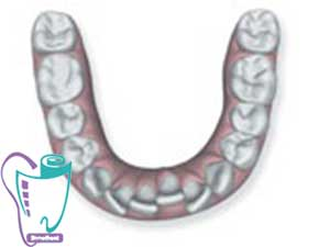 به هم فشردگی دندانها | ارتودنسی نامرئی
