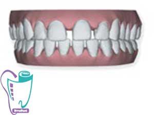فاصله زیاد بین دندانها | ارتودنسی نامرئی