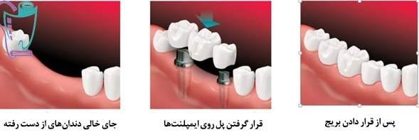 بریج دندان یا پل دندانی | بریج ثابت با پایه ایمپلنت