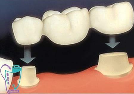 بریج دندان یا پل دندانی | کاربرد | بریج قدیمی