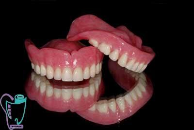 دندان مصنوعی کامل (پروتز کامل)