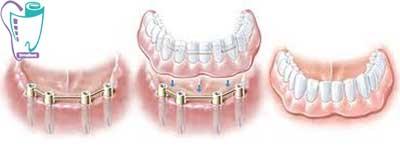 جایگزین دندان مصنوعی