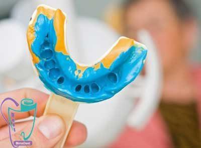 قالب گرفتن از دندانها