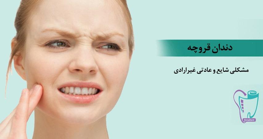 درمان سایش دندان به خاطر دندان قروچه و سایر عوامل با نایت گارد
