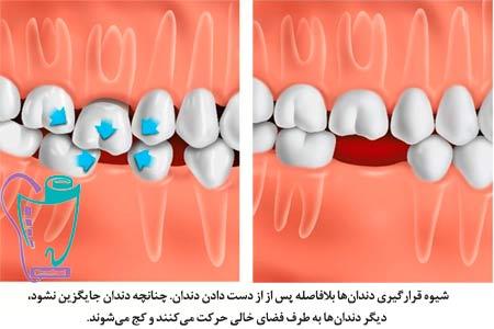 بریج دندان یا پل دندانی | کاربرد | ضرورت استفاده از بریج