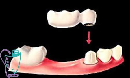 بریج دندان یا پل دندانی | کاربرد | بریج معلق