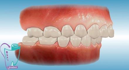 نامرتبی دندان ها | علت و درمان | شلوغی و کجی دندان ها