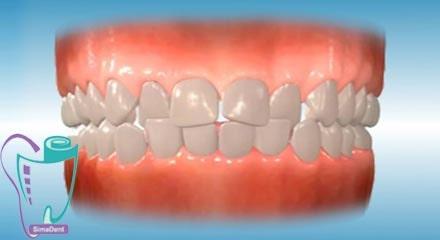 شلوغی و به هم فشردگی دندانها (همپوشانی یا کج بودن دندانها)