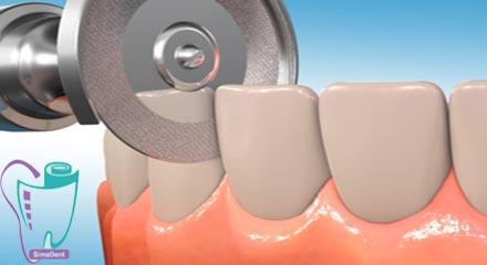 درمان با تراش بین پروکسیمال دندانها