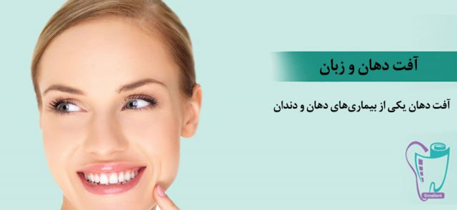 آفت دهان و زبان: علت، علائم و درمان قطعی