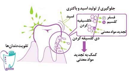 تقویت دندانها