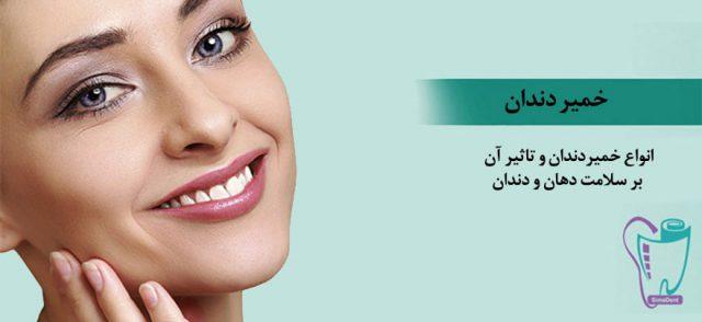 بهترین انواع خمیر دندان (ضد حساسیت، جرم گیر، سفید کننده): مزایا و مضرات