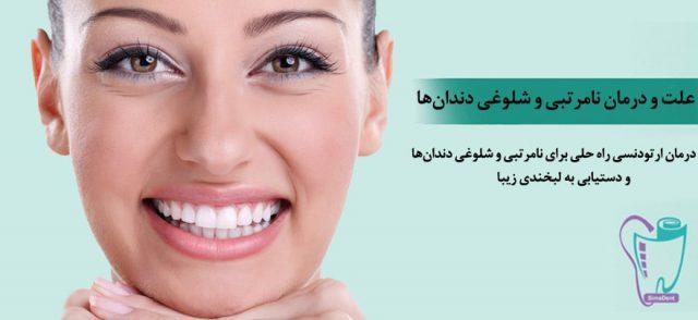 علت و درمان نامرتبی، به هم ریختگی، شلوغی و کجی دندان ها