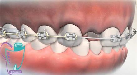 درمان با جایگزینی دندانهای غایب