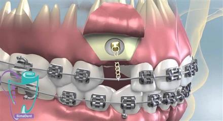 درمان با اصلاح موقعیت دندان نهفته